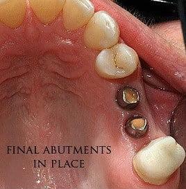 dental-implant-middle