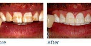 Wooden Teeth or Whiter Teeth