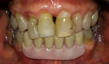 crowns-before-smile-makeover
