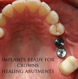 dental-implant-before