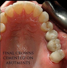dental-implant-finish-m