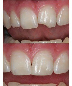 Repair-Chipped-Tooth
