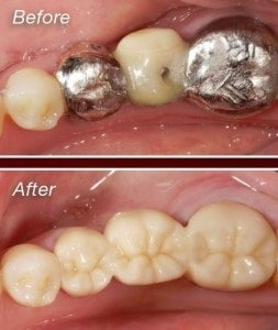 Zirconium-Crown-Before-and-After-253×300
