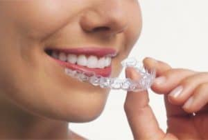 Invisalign for all ages 16 and up.