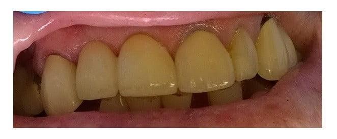 replace-teeth-dentist-m