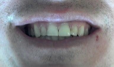 veneer-smile-comp1
