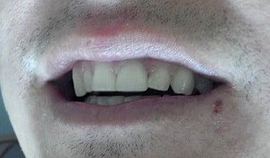 veneer-smile-comp21-m