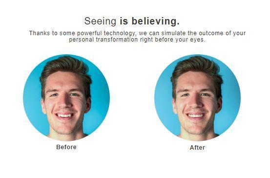 phone invisalign seeing is believing